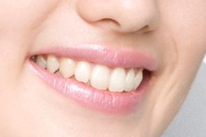審美歯科/ホワイトニングのイメージ